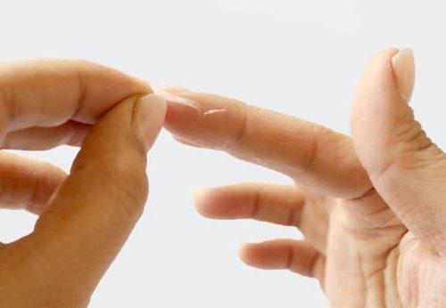 попадание клеящего вещества на кожу